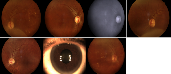 retinopathy-screening